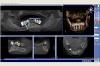 Beispiel 6: 3D Röntgen mit virtueller Implantatplanung