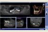 Beispiel 5: 3D Röntgen mit virtueller Implantatplanung